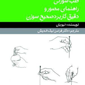 طب سوزنی – تکنیکهای سوزن زدن -مصور