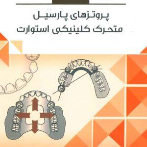 خلاصه کتاب پروتزهای پارسیل متحرک کلینیکی استوارت