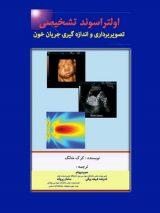 اولتراسوند تشخیصی