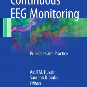Continuous EEG Monitoring: Principles & Practice
