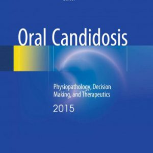 Oral Candidosis