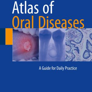 Atlas Of Oral Diseases: A Guide For Daily Practice