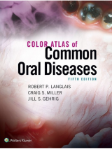 Color Atlas Of Common Oral Diseases 2017