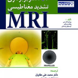 مبانی تصویربرداری تشدید مغناطیسی MRI