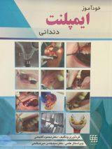 خودآموز ایمپلنت دندانی