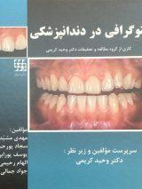 فتوگرافی در دندانپزشکی