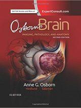 Osborn's Brain 2018