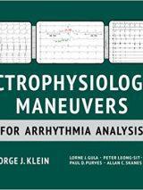Electrophysiological Maneuvers For Arrhythmia Analysis