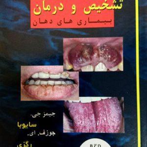 PDQ تشخیص و درمان بیماریهای دهان