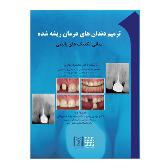 ترمیم-دندان-های-درمان-ریشه-شده-شایان-نمودار-اشراقیه