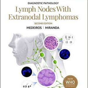 Diagnostic Pathology Lymph Nodes And Extranodal Lymphomas