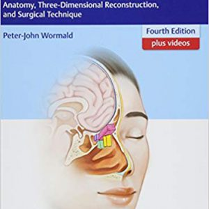 Endoscopic Sinus Surgery : Anatomy , Three Dimensional Reconstruction And Surgical Techniques 2017