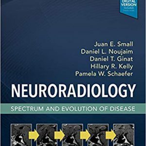 Neuroradiology : Spectrum And Evolotion Of Disease – 2018