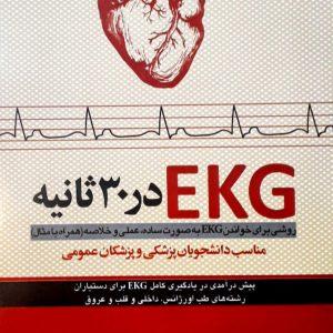 EKG در ۳۰ ثانیه