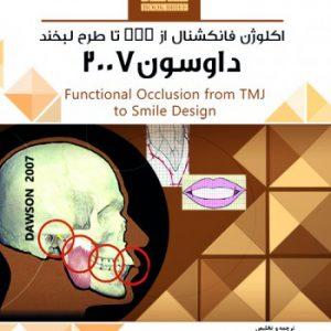 Book Brief خلاصه کتاب اکلوژن فانکشنال از TMJ تا طرح لبخند ( داوسون ۲۰۰۷ )