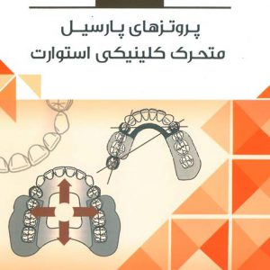 Book Brief خلاصه کتاب پروتزهای پارسیل متحرک کلینیکی استوارت
