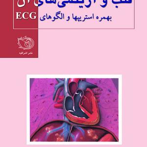 قلب و آریتمی های آن به مراه استریپها و E.C.G آموزشی