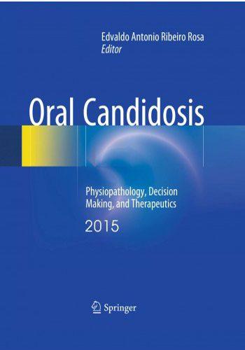 Oral Candidosis