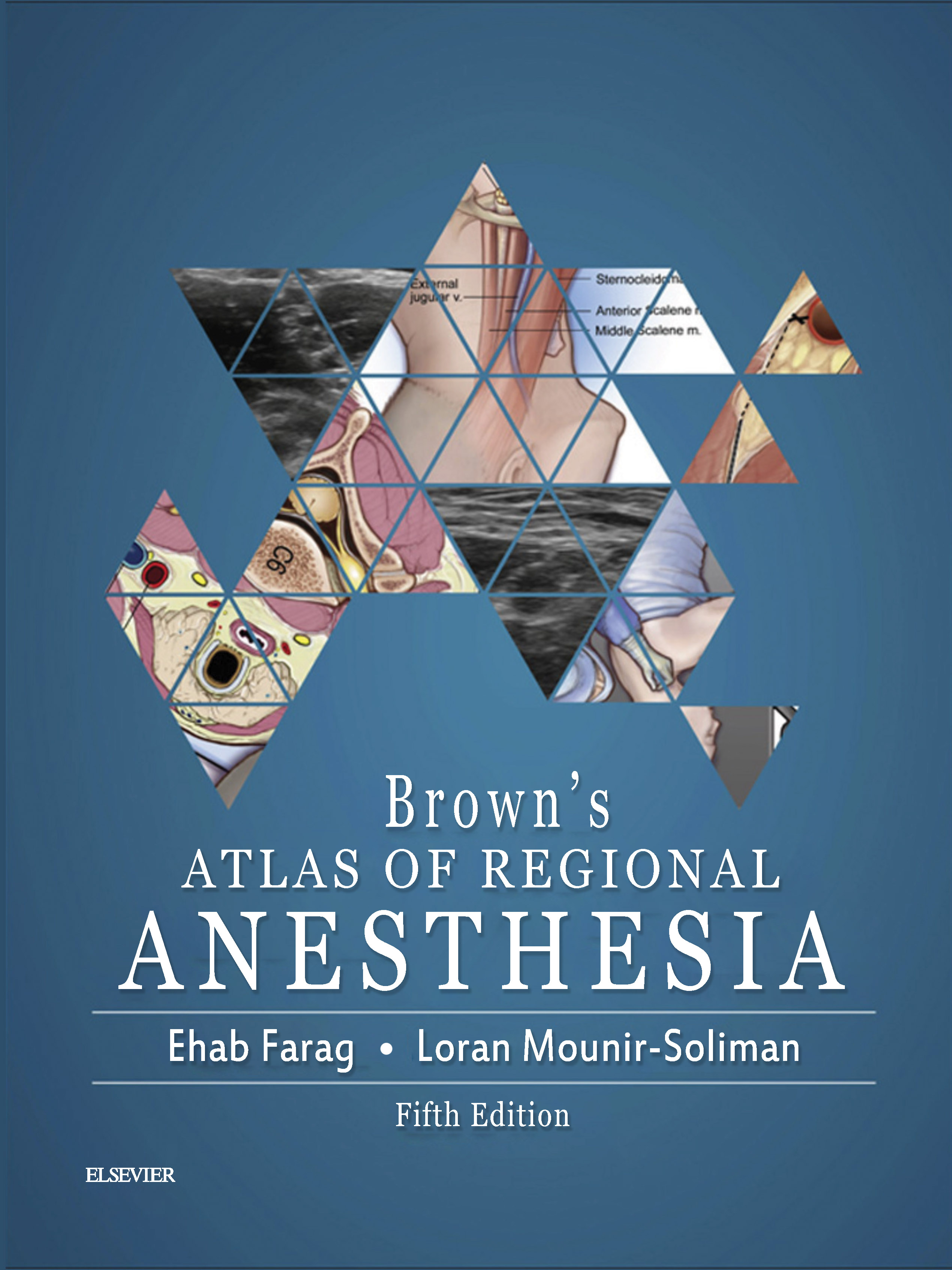brown's Atlas of Regional Anesthesia Farag Soliman اشراقیه افست