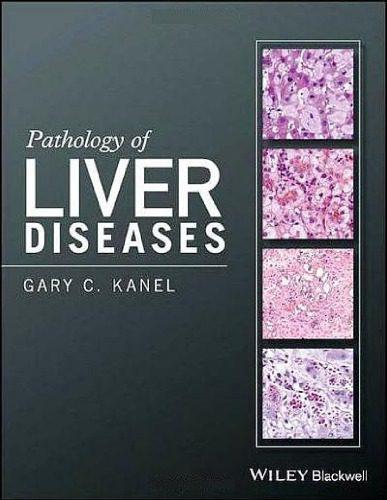 pathology-of-liver-diseases-kanel-wiley-افست-اشراقیه-۲۰۱۷