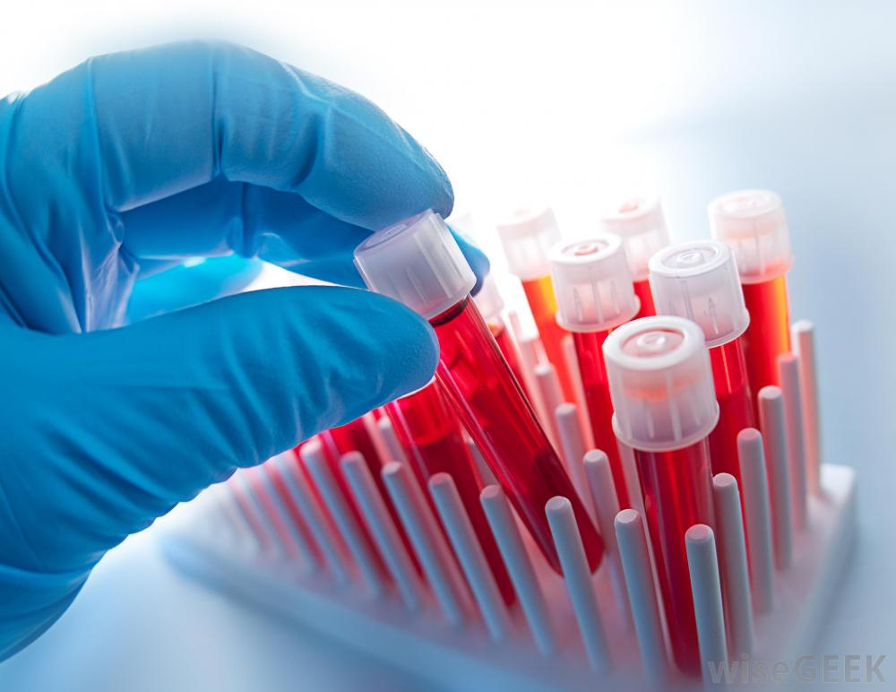 Blue Gloved Hand With Blood Test Tubes