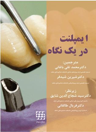 ایمپلنت-در-یک-نگاه-شجاع-الدین-شایان-نمودار-اشراقیه