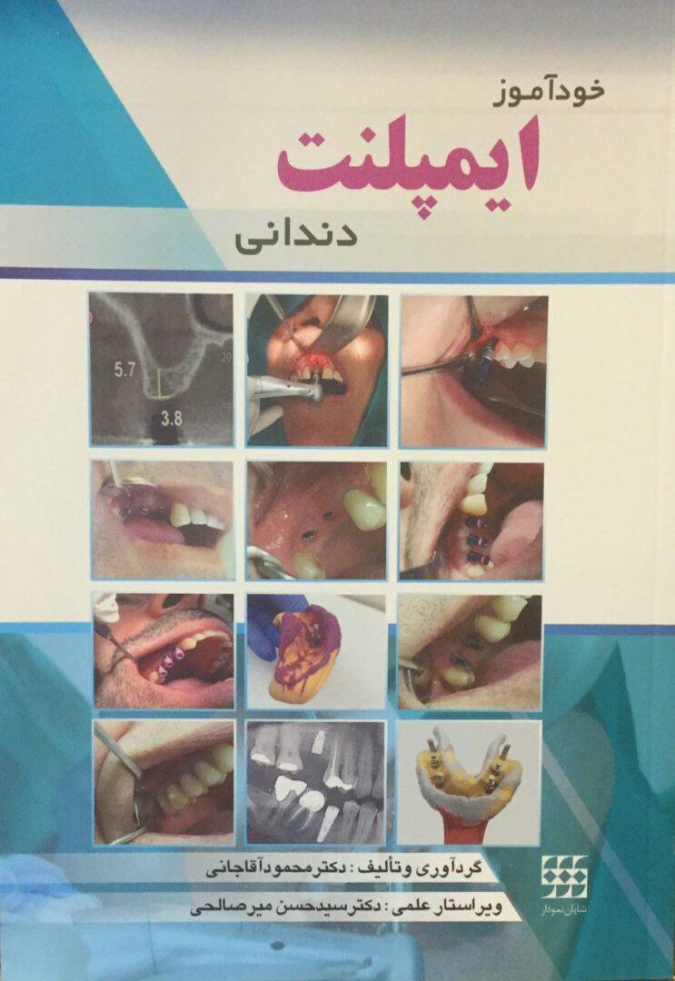 خودآموز-ایمپلنت-دندانی-محمود-آقاجانی-شایان-نمودار-۱۳۹۶-اشراقیه