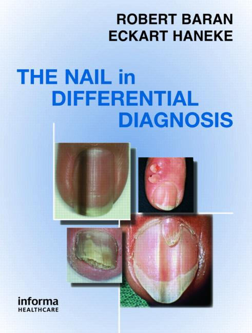 Nail-in-Differential-Diagnosis