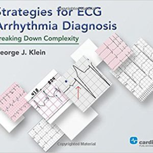 Strategies For ECG Arrhythmia Diagnosis