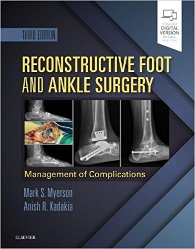 reconstructive-foot-and-ankle-surgery-اشراقیه-افست-جراحی-۲۰۱۹مچ-پا
