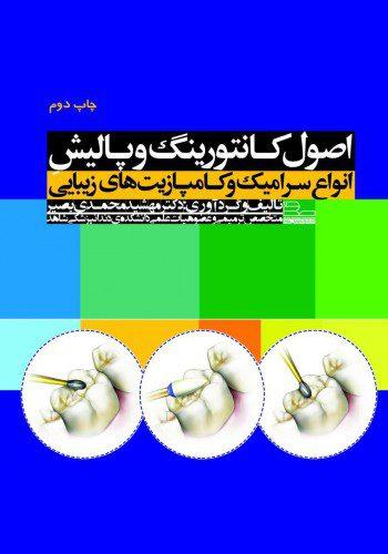 کانتورینگ-پالیش-رویان-پژوه-اشراقیه-۱۳۹۶