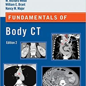 Fundamentals Of Body MRI (Fundamentals Of Radiology) – 2017