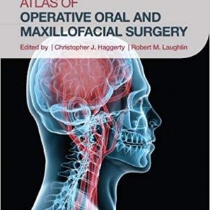 Atlas Of Operative Oral And Maxillofacial Surgery – 2016