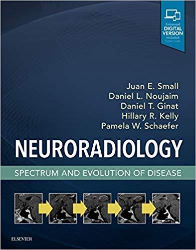 نورورادیولوژی-Neuroradiology-آشراقیه-افست-۲۰۱۸-اشراقیه-تکست
