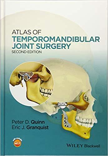 Atlas-joint-surgery-افست-۲۰۱۵-اشراقیه