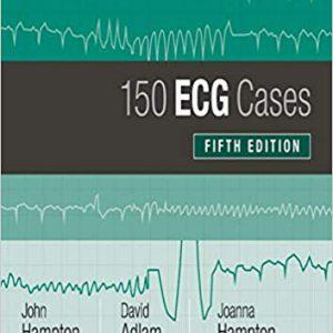 ECG Cases (150 ECG Problems)  2019 – الکتروکاردیوگرام