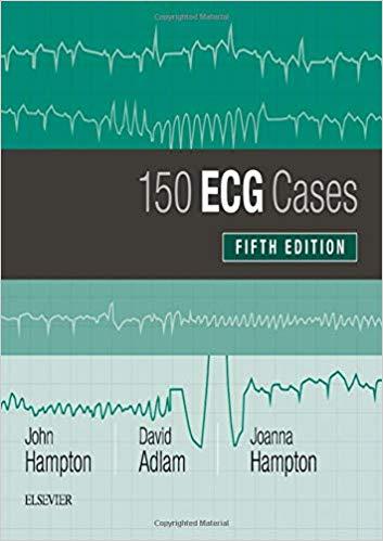 ECG Cases (150 ECG Problems) 2019 - الکتروکاردیوگرام