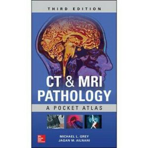 CT & MRI Pathology : A Pocket Atlas – 2018