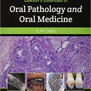 Cawson's Essentials Of Oral Pathology And Oral Medicine – 2017