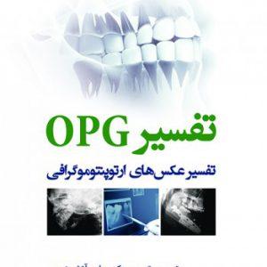 تفسیر OPG – تفسیر عکس های ارتوپنتوموگرافی