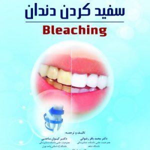 گام به گام با سفید کردن دندان (Bleaching)