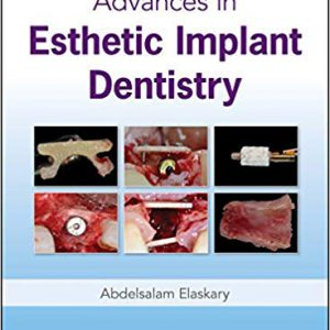 Advances In Esthetic Implant Dentistry – 2019