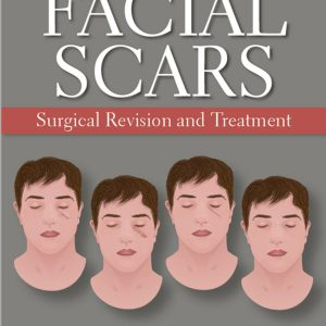 Facial Scars: Surgical Revision And Treatment – 2019