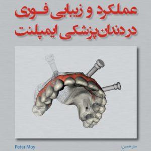 عملکرد و زیبایی فوری در دندانپزشکی ایمپلنت