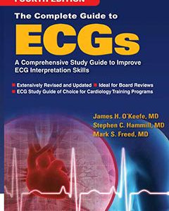 The Complete Guide To ECG – 2017