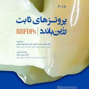 پروتزهای ثابت رزین باندد ۲۰۱۸ – RBFDPs