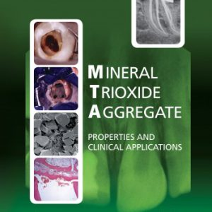 Mineral Trioxide Aggregate : Properties And Clinical Applications