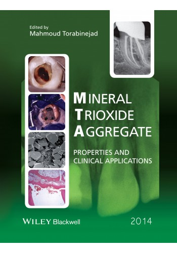 Mineral Trioxide Aggregate -Properties and Clinical Applications - دندانپزشکی ترابی نژاد