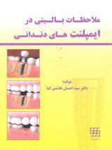 ملاحظات بالینی در ایمپلنت های دندانی