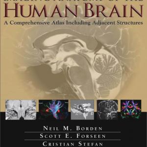 Imaging Anatomy Of The Human Brain – 2016